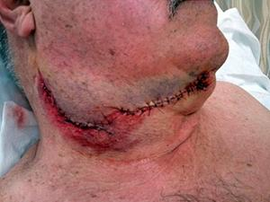 carving accident injuries
